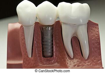 モデル, 歯医者の, 移植, 終わらせられた