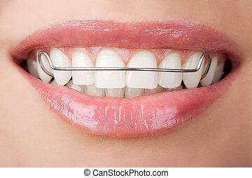 保持器, 歯