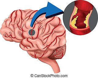 固まり, 脳, 概念, 血