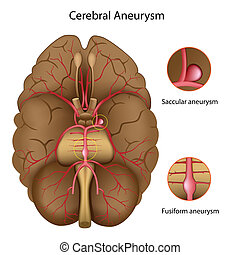 大脳である, 動脈瘤, eps10