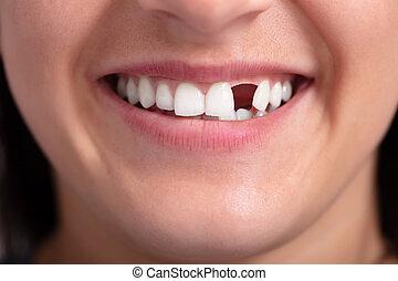 女, 行方不明の歯