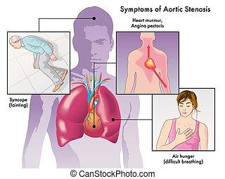 徴候, stenosis, 大動脈