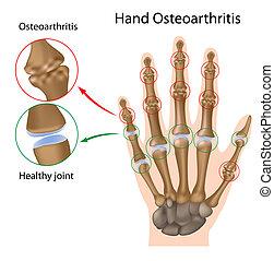 手, 骨関節炎, eps8