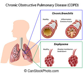 病気, 肺, eps8