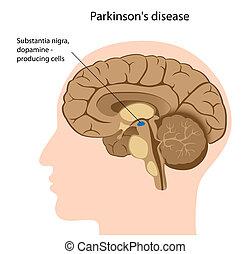 病気, parkinson's, eps8