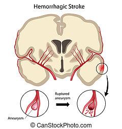 脳, hemorrhagic, eps10, ストローク