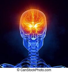走り読みしなさい, 医学, 脳, 前部, x 線, 光景