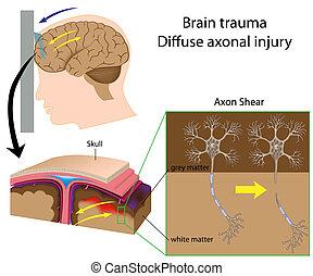 軸索, 脳, ひずみ, 外傷, eps8