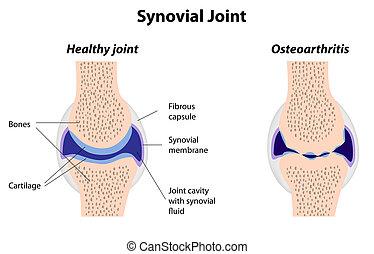 関節炎, 接合箇所, synovial, 正常