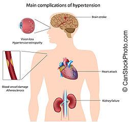 高血圧, complications, eps8