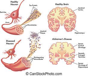 alzheimer の病気