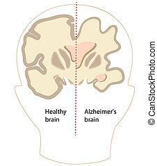 alzheimer, 脳, 病気, eps8
