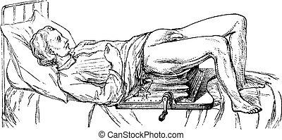 illustration., 辞書, 1885., 型, -, lithotripsy, labarthe, 装置, 薬, 作動させる, 主題, 刻まれる, ポール, 普通