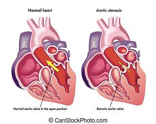 stenosis, 大動脈